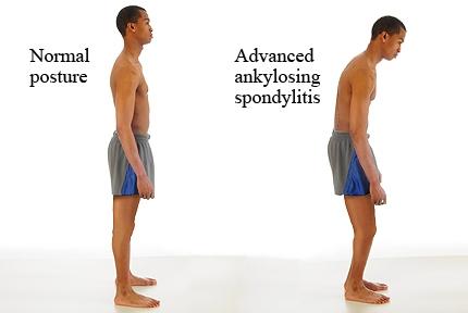 Ankylosing Spondilitis